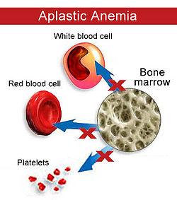 aplastic anemia cells